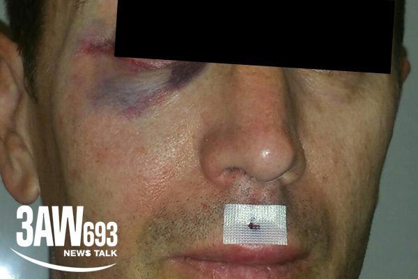 Article image for Cyclist punched, set upon by fellow cyclist in vicious attack