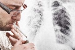 CT scans spearhead new plan to detect lung cancer early